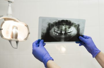 Printed X-Ray in dentist hands